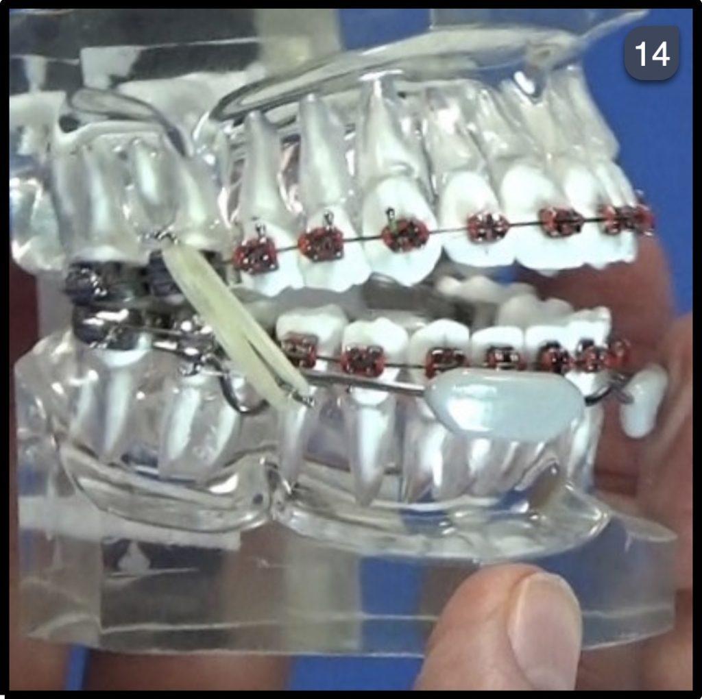 Lip bumper Demo Step 14
