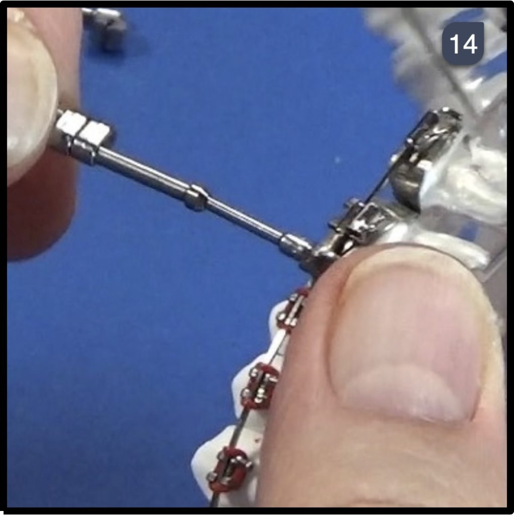 Twin Force Bite Corrector Step 14