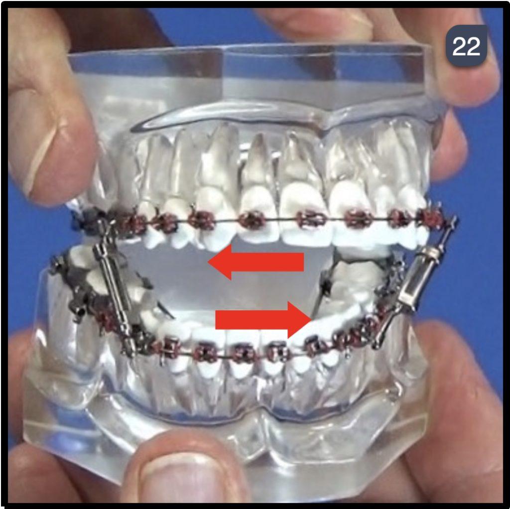 Twin Force Bite Corrector Step 22