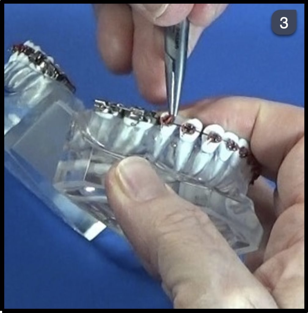 Twin Force Bite Corrector Step 3