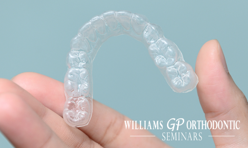 are clear aligners a good idea