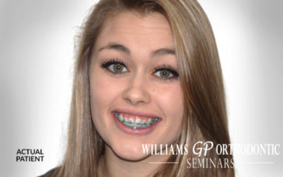 Your Patients Need You to Offer Orthodontics